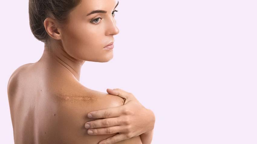 Cicatrices¿Qué debes saber?