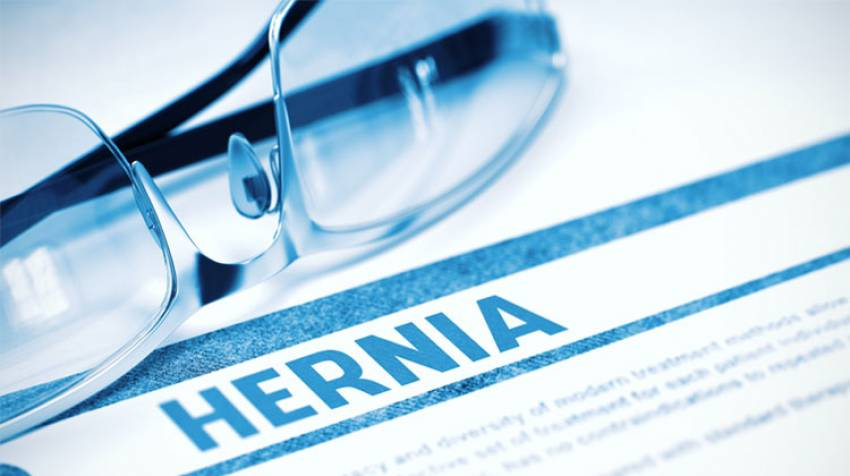 Tratamiento hernia hiatal embarazo