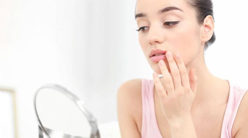 Herpes labial: Una infección muy frecuente