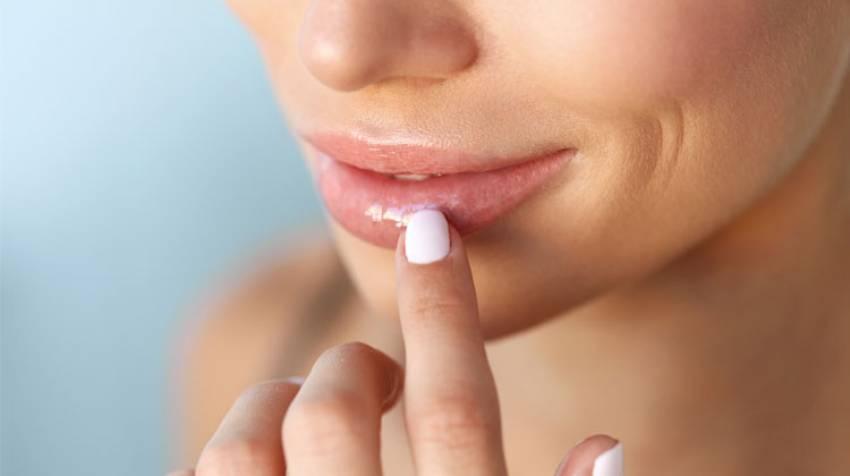 Tus labios hablan de salud ¡Escúchalos!